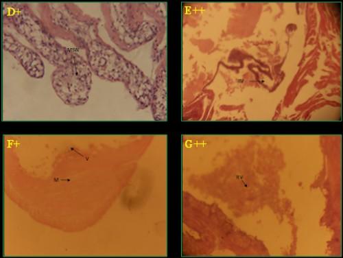 Histological photomicrograph of control and diazinon affected intestine tissues of three fish species; A-C = <em>C. punctatus</em>; D&amp;E = <em>H. fossilis</em>; F&amp;G = <em>A. testudineus</em>; * = control; + = 20 mg/l; ++ = 25 mg/l concentration; M= muscular tissue; S= sub mucosa; V= villi; MSW= muscularies swollen; RV= rupture of villi